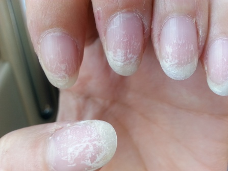 Never Get Gel Nails